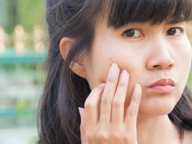 緑のぼかし画像でアジアの女性の顔にニキビを少しクローズアップ