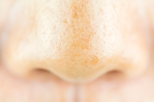 Close up acne small pimple on nose. concept of beauty and health.