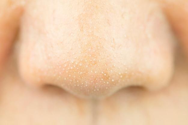 鼻の上のにきびの小さなお尻を閉じます。美と健康のコンセプト。