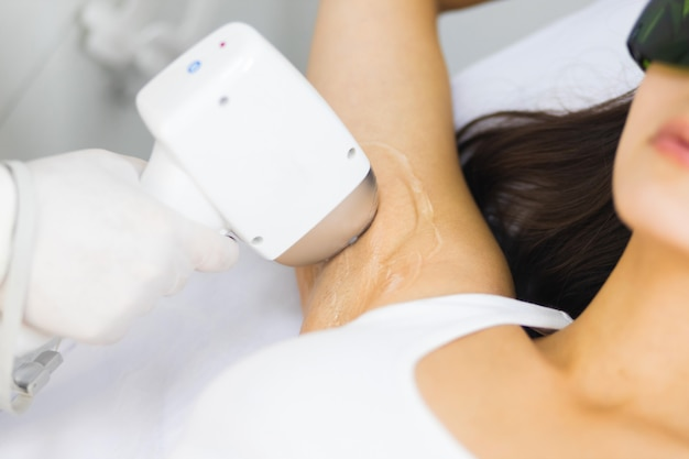 Close-up of armpit hair removal with laser