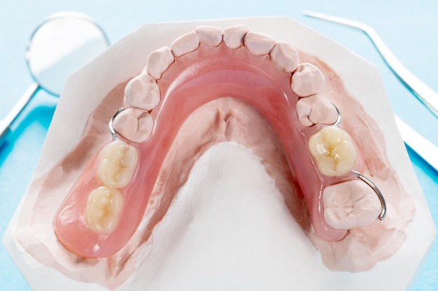Close up, artificial removable partial denture or temporary partial denture on blue ground.