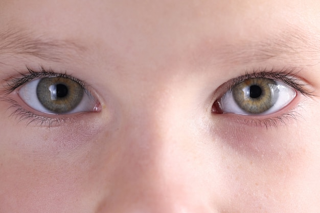 Close-up baby eyes and eyebrows look straight. treatment and correction of vision in children