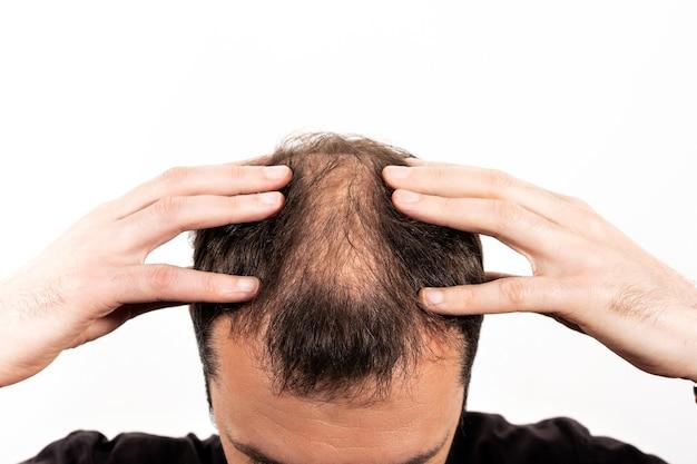격리 된 흰색 배경에 젊은 남자의 클로즈업 대머리.