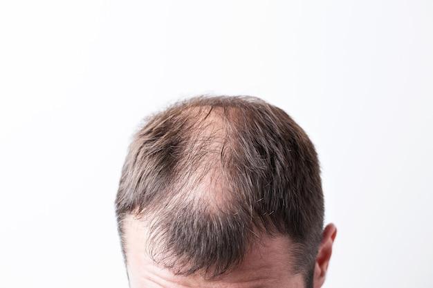 Крупным планом лысеющая голова молодого человека на белом фоне изолированных.
