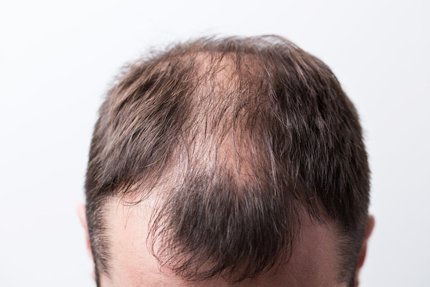 Close-up balding head of a young man on a white isolated background.