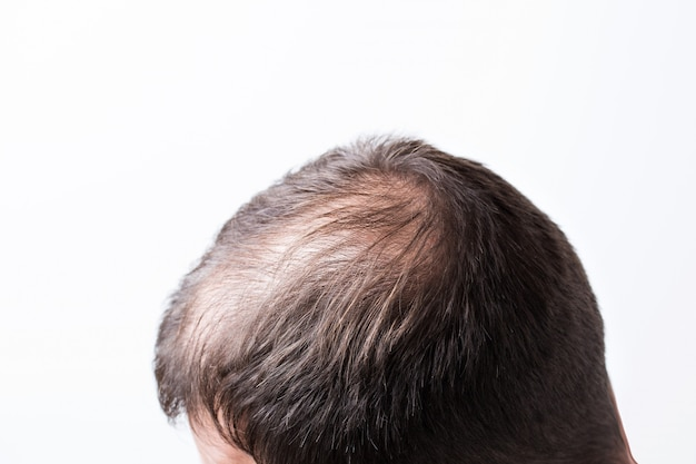 Close-up balding head of a young man on a white isolated wall