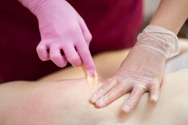 Косметолог крупным планом удаляет нежелательные волосы с груди человека с помощью сахарной пасты в спа-салоне. мужская эпиляция. мастер эпиляции резко отрывает воск от мужской груди