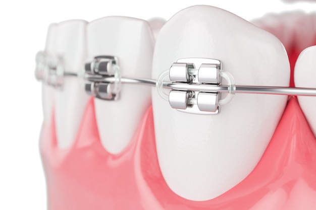 Close up beauty health teeth with brace. selective focus. 3d render.