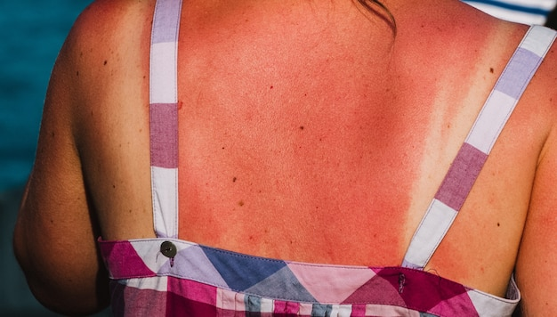 Close up on burnet skin by the sun on the woman