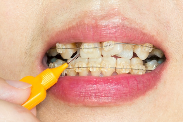 Close up crooked teeth with braces, interdental brushing