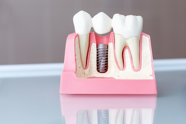 Close up of a dental implant model