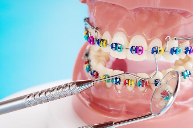 Крупный план инструментов стоматолога и ортодонтическая модель - демонстрация модели зубов с различными ортодонтическими скобками или скобами