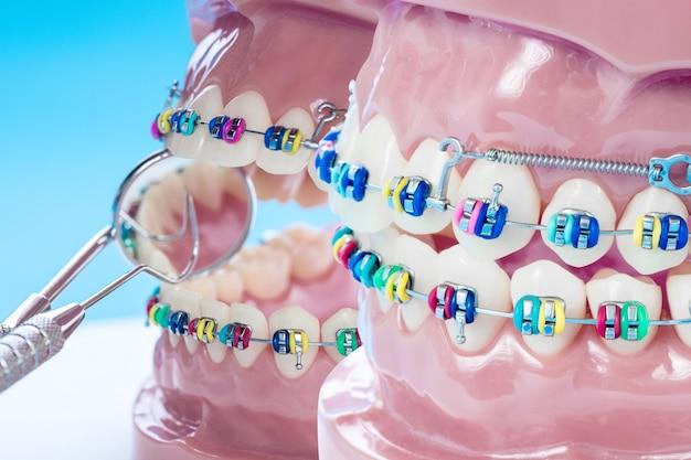 Крупным планом инструменты стоматолога и ортодонтическая модель