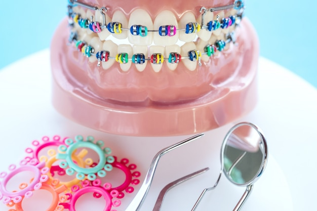 Close up dentist tools and orthodontic model