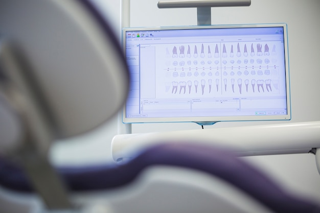 Close-up of dentition chart on monitor screen