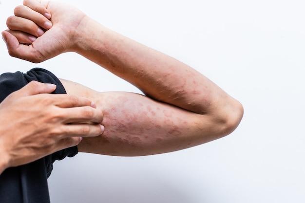 Крупным планом дерматит на руке человека, аллергический дерматит, сыпь, экзема кожи пациента. текстура детали кожи симптом атопического дерматита, грибок кожи. понятие о дерматологии. Premium Фотографии