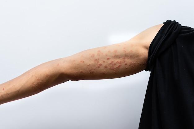 Крупным планом дерматит на руке человека, аллергический дерматит, сыпь, экзема кожи пациента. текстура детали кожи симптом атопического дерматита, грибок кожи. понятие о дерматологии.