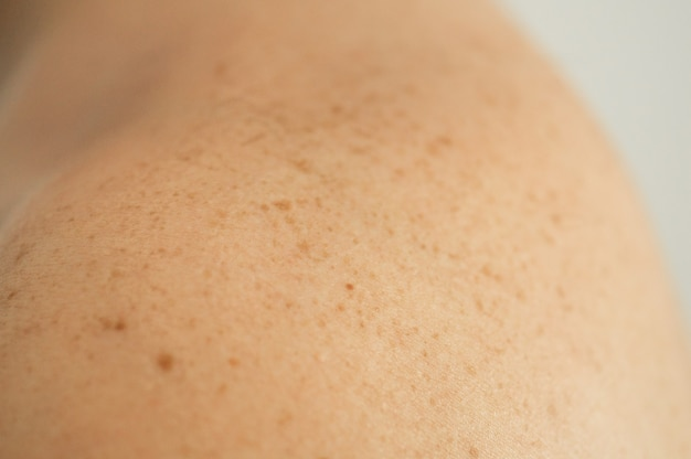 Close up detail of the bare skin on a man back with scattered moles and freckles. checking benign moles
