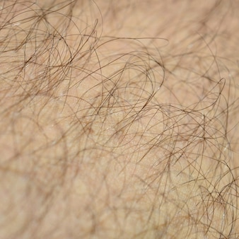 Close up detail of human skin with hair. mans hairy leg