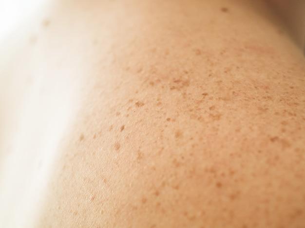 Закройте деталь обнаженной кожи на спине человека с рассеянными родинками и веснушками. проверка доброкачественных родинок