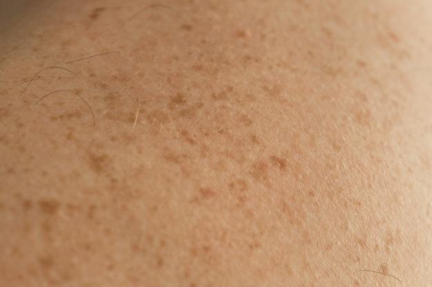 ほくろやそばかすが点在している男性の背中の素肌の詳細を閉じます。良性のほくろを確認する
