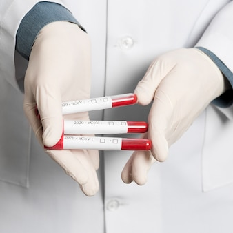 Close-up of doctor holding vacutainers