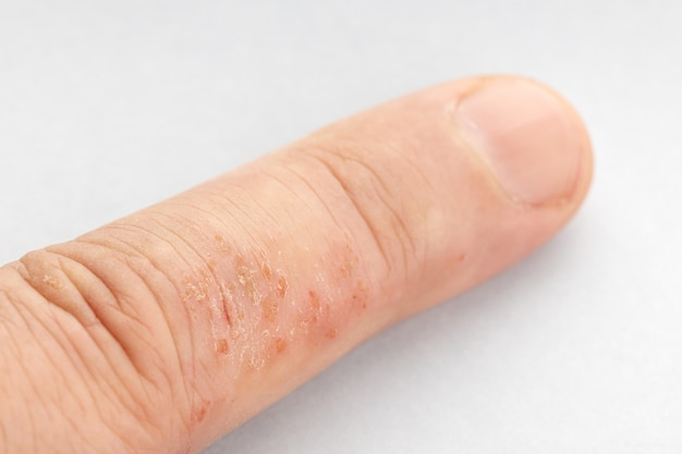 Close up of eczema on finger. skin disease