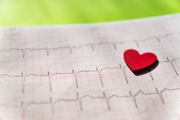Close up of an electrocardiogram in paper form vith red wooden heart. ecg or ekg paper on black.  medical and healthcare concept.