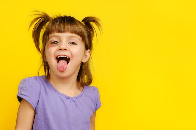 Close-up of funny little girl with bruised eye showing her tongue