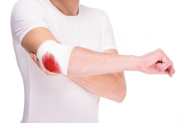 Close-up hand of man, injured painful elbow.