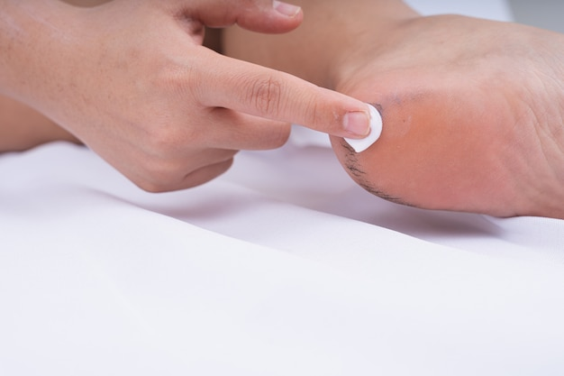 Close up hand putting moisturizer lotion or medicine cream to treat broken skin on foot