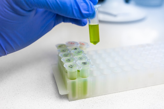 Close up to hands in blue gloves hold microtube with green liquid extract. synthesis of new vaccine or drug against virus.