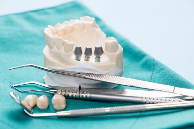 Закройте модель имплантата, зубная опора фиксирует мостовой имплант и коронку.