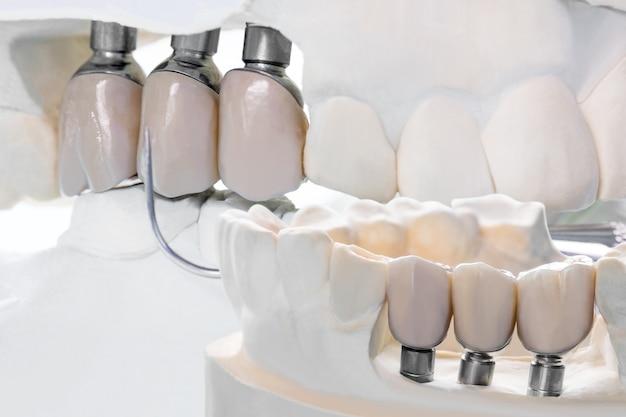 Крупным планом модель имплантата зубная опора фиксирует мостовидный протез и коронку.