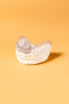 Крупным планом индивидуальный лоток для зубов ортодонтическая стоматологическая тема. в руке невидимые подтяжки