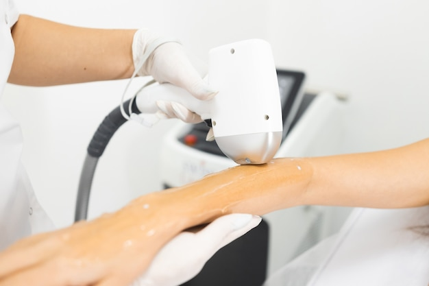 Close up of laser hair removal procedure on hand