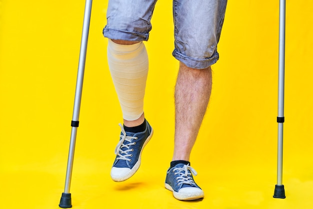 Close-up of the legs of a man from the front in shorts and on crutches, with a bandaged leg.