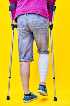 Close-up the legs of a man from behind with purple t-shirt shorts and crutches, with a bandaged leg.