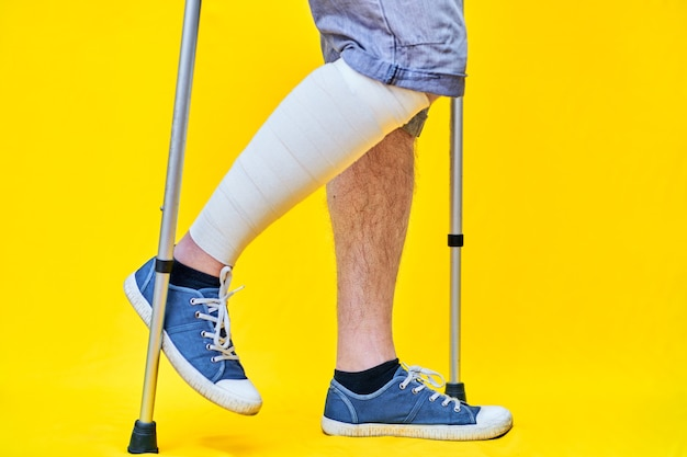 Close-up of the legs of a man in right profile wearing shorts and on crutches, with a bandaged leg.