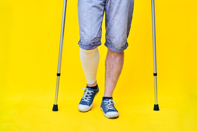 Close-up of the legs of a man wearing shorts and on crutches, with a bandaged leg