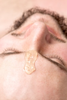 Close up of liquid wax between the eyebrows of a young man before waxing in beauty salon