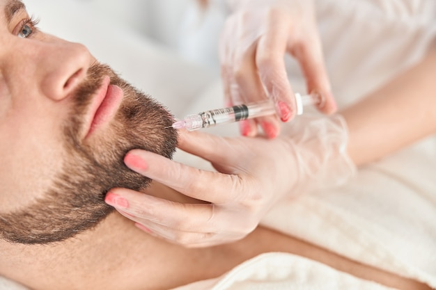 Close up makes mesotherapy injections to beard man. treatment of male by a beautician for hair growth.