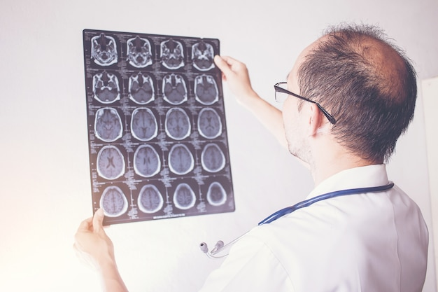 Close up of male doctor holding x-ray or roentgen image, check brain