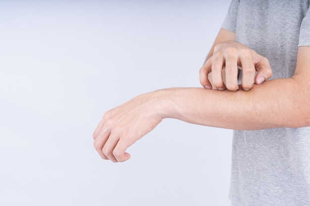 Close up on male hand scratching on his arm