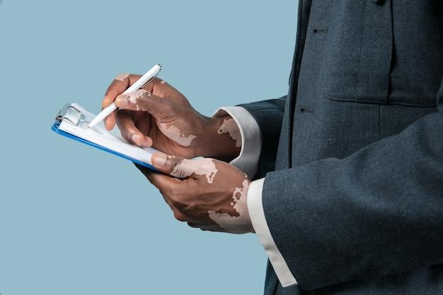 Primo piano di mani maschile con pigmenti di vitiligine isolati su sfondo blu.