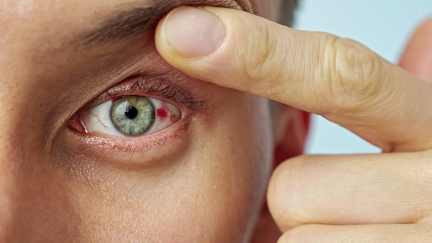 Close-up of a man's sore eye, stretched wide with fingers.