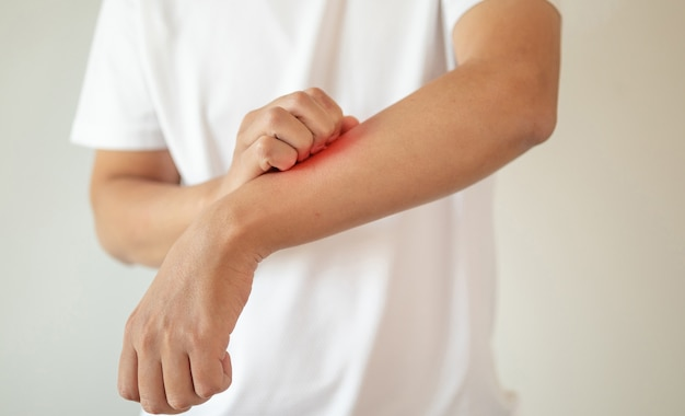 Close up on man scratching on arm isolated