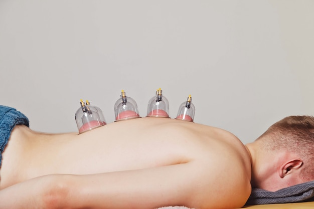 Close-up for multiple vacuum cups, medical cupping therapy on human body. doctor with cups for patient, therapy. wellness, health injury rehabilitation concept. alternative medicine. copy space