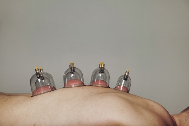 Close-up for multiple vacuum cups, medical cupping therapy on human body. doctor with cups
