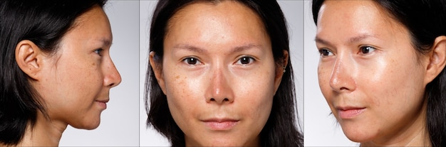 Close up nose which is sunburned from summer sun, sunburn face of asian woman before applying uv blocking cream protective sunscreen.